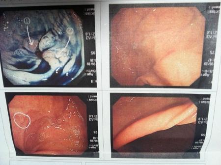 胃カメラ画像