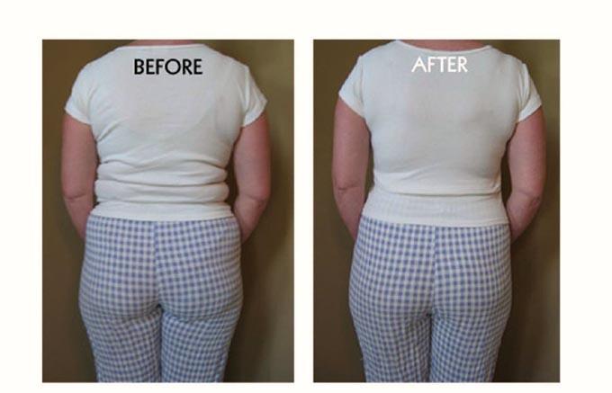 ナノスリミングスーツのダイエット効果でバストアップ、シェイプアップ、ヒップアップ