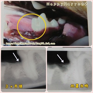 歯科治療2回目3
