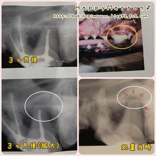 歯科治療2回目2