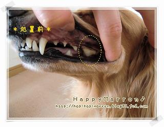 3回目奥歯1
