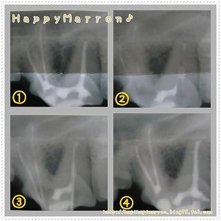 3回目奥歯2