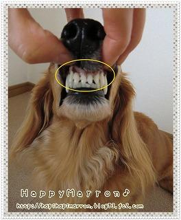 3回目前歯