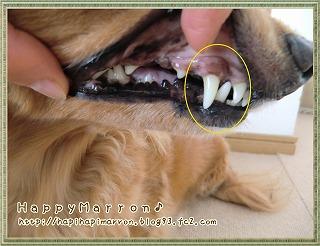 3回目右上犬歯