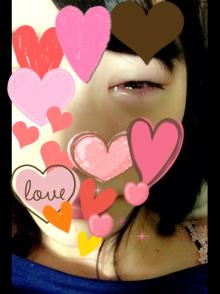 SKE48 松井珠理奈 不調の左目が悪化