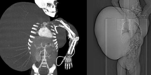 【画像あり】 2歳児の体から15キロの腫瘍を摘出