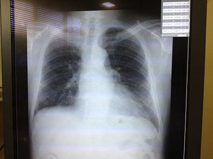 11162012広大病院S2
