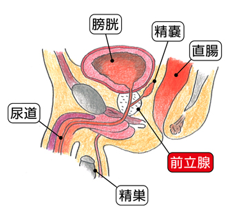 前立腺の位置図(概略)