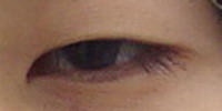eyeprocess_start.jpg