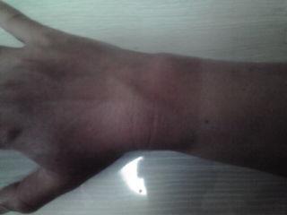 手の日焼け跡