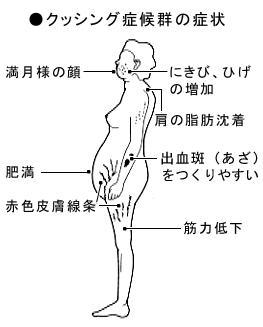 クッシン症候群