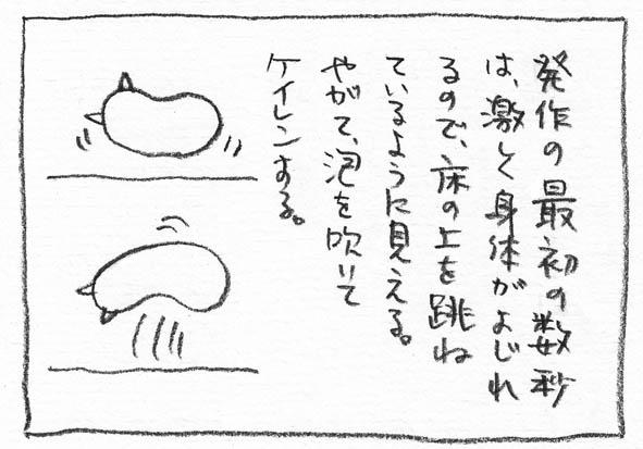 11_痙攣