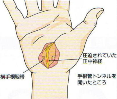 carpal-tunnel-syndrome-5.jpg