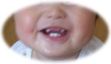 2012年5月18日八重歯