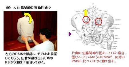仙腸関節の可動性チェック